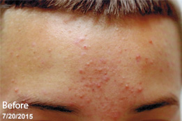 acne-ba-2-before