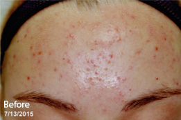 acne-ba-before
