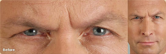 Botox Injections Dermatology Amp Laser Surgery Center Of
