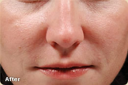 Facial Fillers Dermatology Amp Laser Surgery Center Of