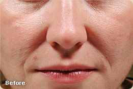 juvederm-before