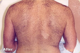 laser-hair-removal-after