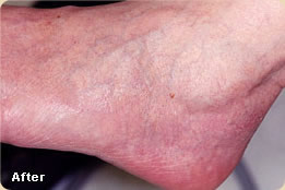 vascular-lesions-after2