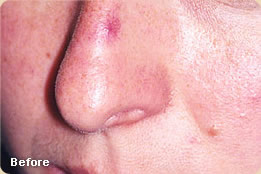 Vascular Lesions Dermatology Amp Laser Surgery Center Of