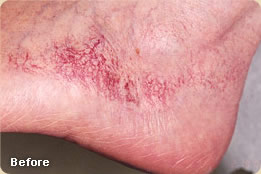 vascular-lesions-before2