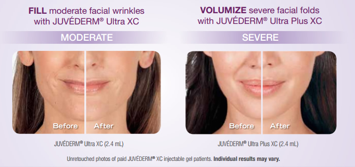juvederm-before-after-results