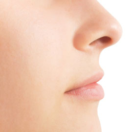 Facial-Spider-Veins-Causes-and-Solutions