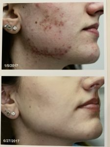 best acne scars treatment