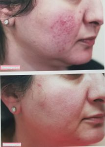 Microneedling scars facial New Jersey